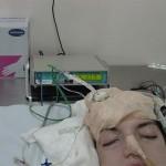 Νευροπαραμέτρηση
