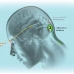 Νευροπροσθετική